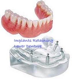 Lower Denture Dental Implants