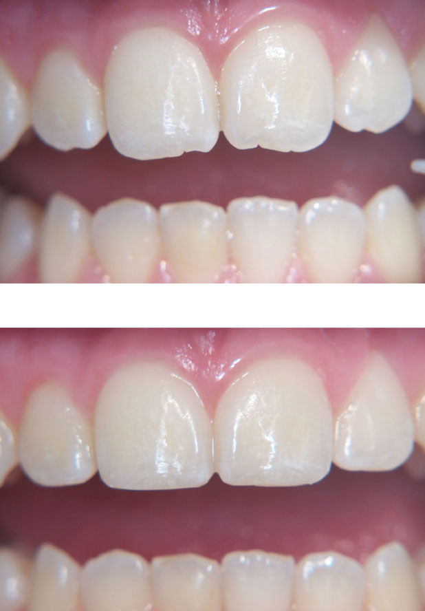 Wanting to fix your wonky smile? Consider a cosmetic re-contour!