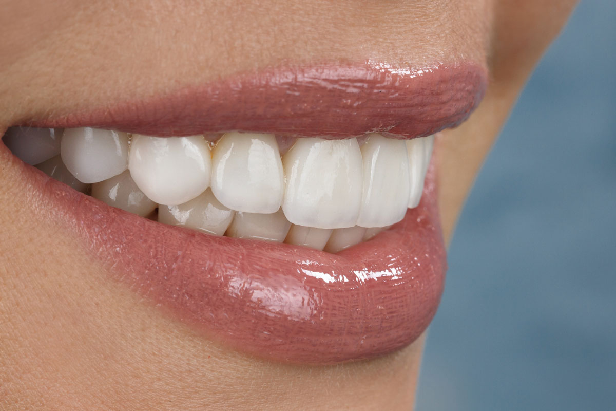 6 Things You Can Do To Keep Your Porcelain Veneers Shiny And White