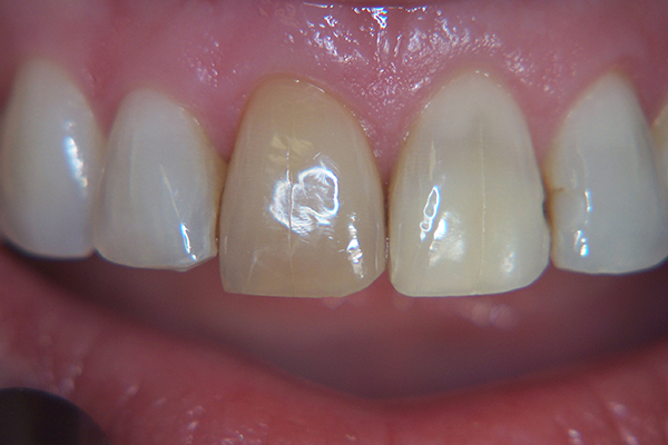 Before - Two discoloured incisors