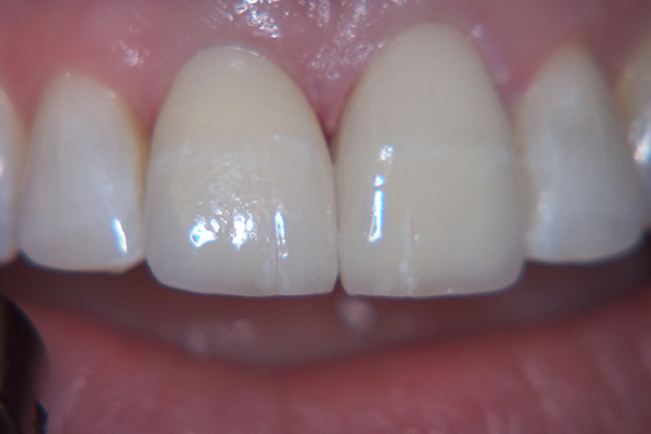 After - Solution: Two porcelain veneers