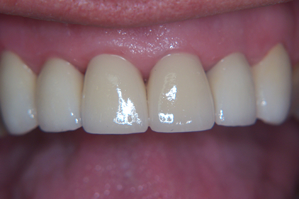 After - Solution: Six zirconia crowns