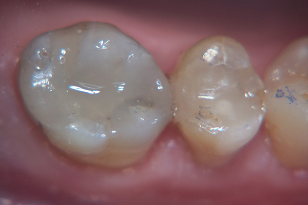 After - Solution: tooth-coloured fillings