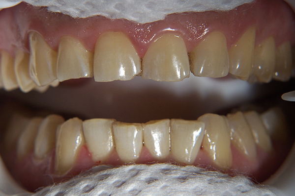 Before - Enamel abrasion and discolouration