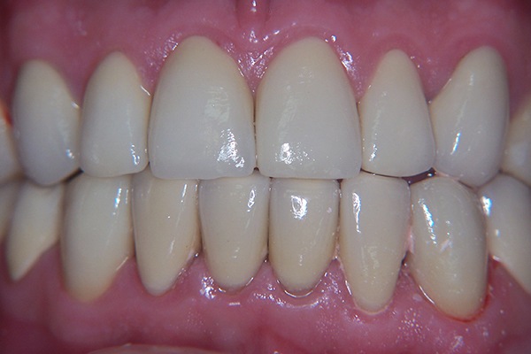 After - Solution: Full-mouth crown reconstruction