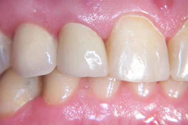 After - Solution: Implant and two crown