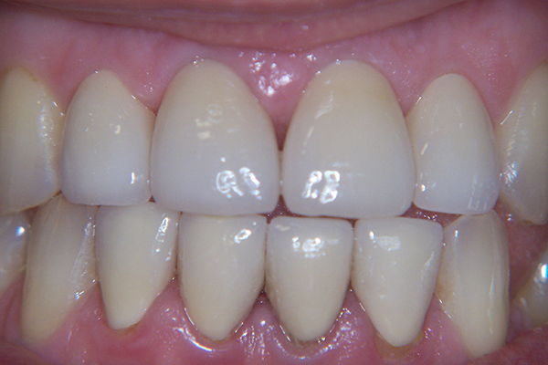 After - Solution: Orthodontics and crown reconstruction