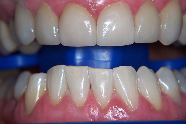After - Solution: Upper - porcelain veneers, lower - Zoom whitening