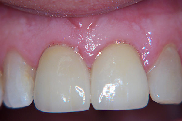 After - Solution: Root canal and two crowns