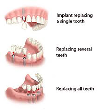 Diagram showing various types of dental implants available from Chatswood Dental Care